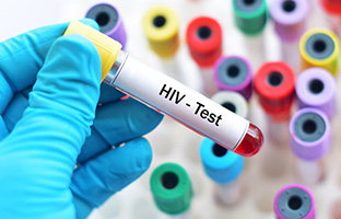 HIV RNA Test - Accuracy, Window, Cost - HIV Early Detection Test